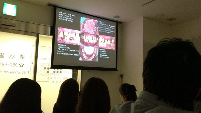 歯周病勉強会