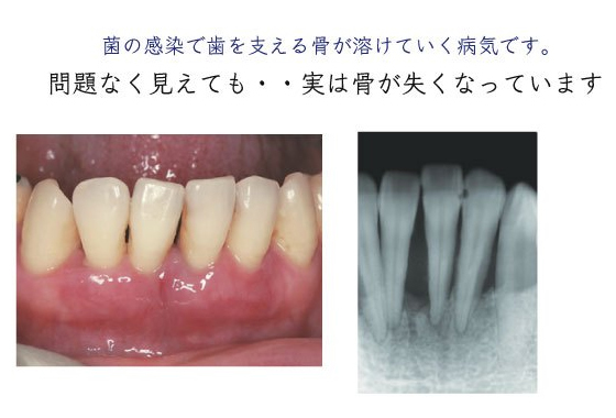 菌の感染で歯を支える骨が溶けていく病気です。問題なく見えても・・実は骨が失くなっています